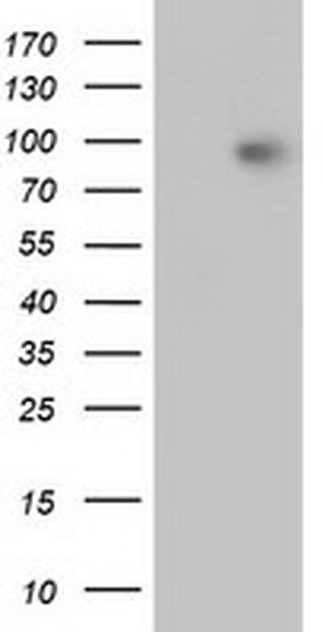 Beta-catenin Mouse anti-Canine, Human, Mouse, Rat, Clone: OTI3F9, liquid,