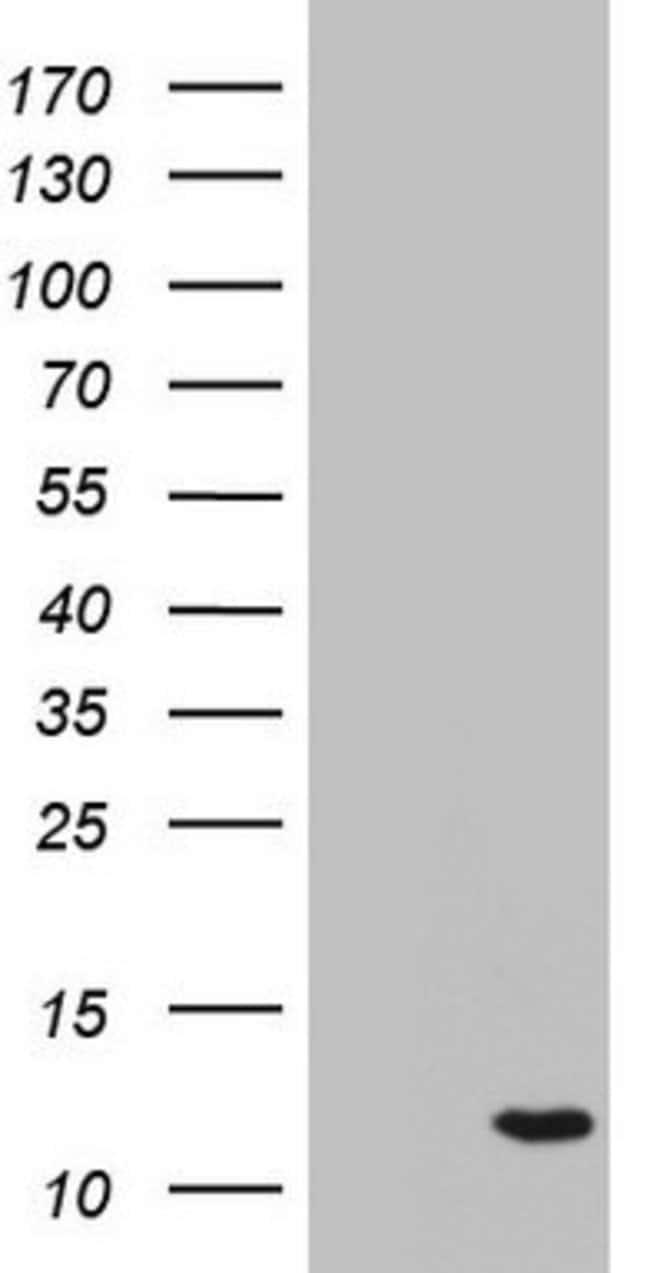 C11orf67 Mouse anti-Human, Clone: OTI4C1, lyophilized, TrueMAB  100 µg;