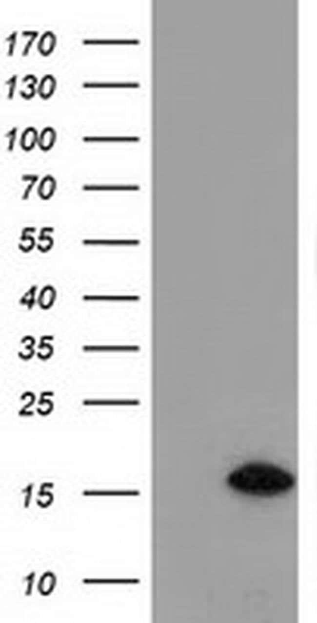 C15orf40 Mouse anti-Human, Clone: OTI1D8, liquid, TrueMAB  100 µL;