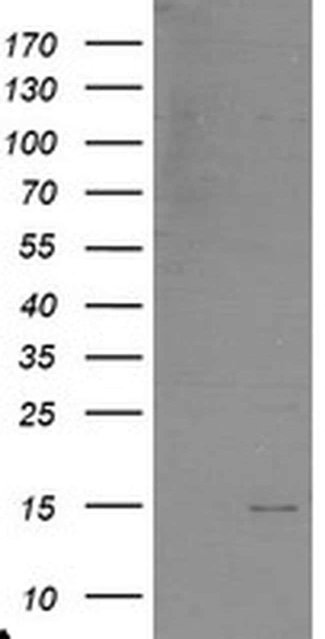 C17orf37 Mouse anti-Human, Clone: OTI1D4, liquid, TrueMAB  30 µL;