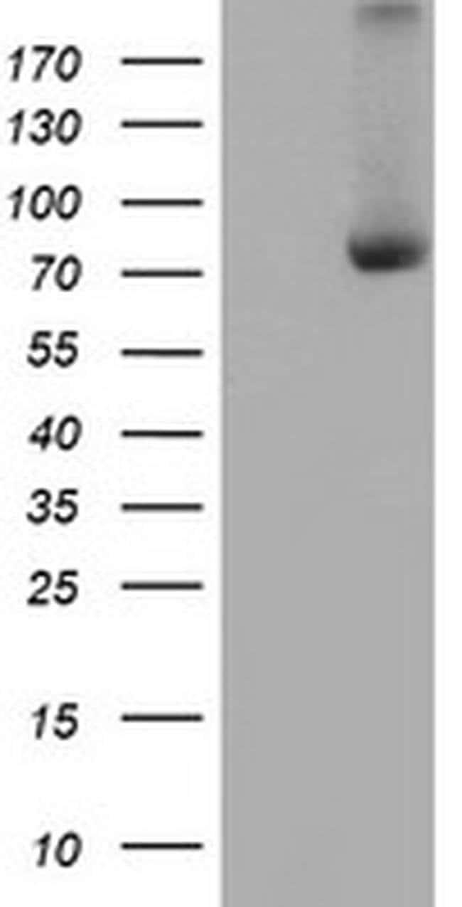 C1S Mouse anti-Human, Clone: OTI2F5, liquid, TrueMAB  100 µL; Unconjugated