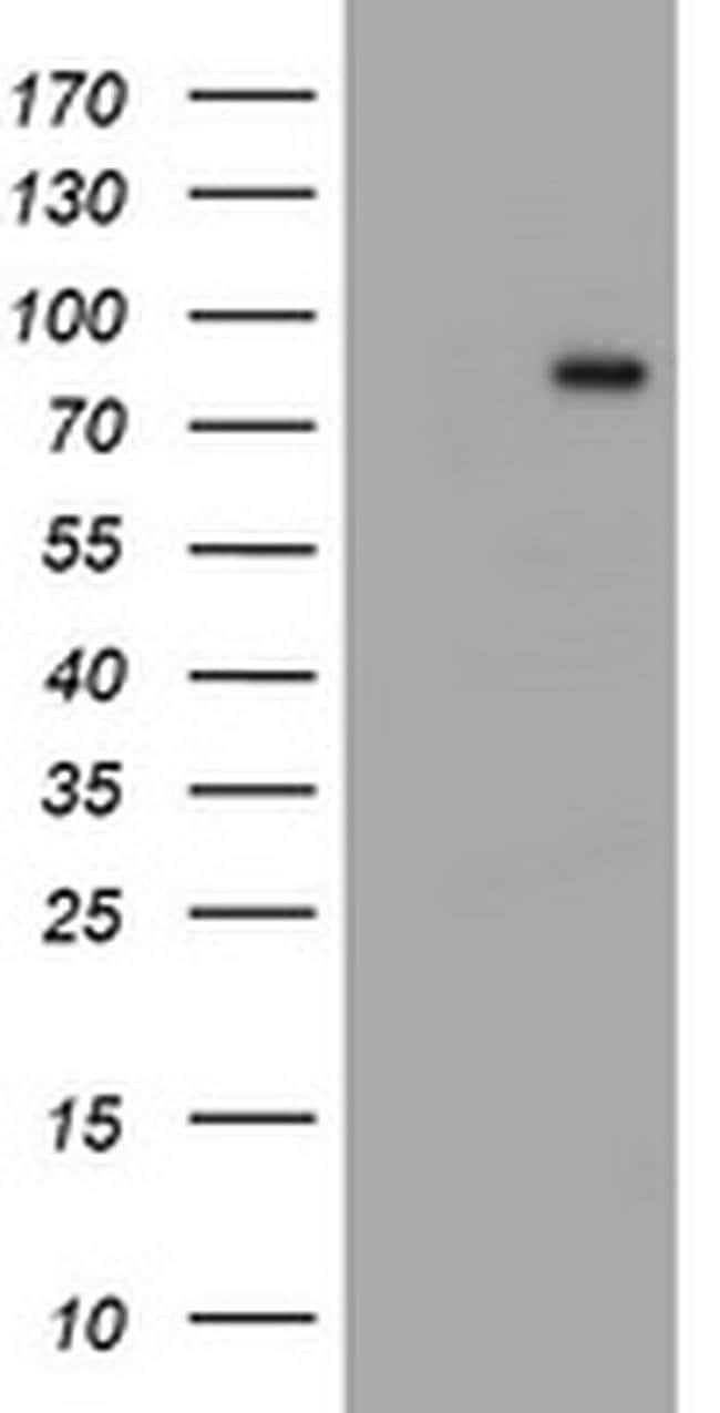 C1S Mouse anti-Human, Mouse, Rat, Clone: OTI2A8, liquid, TrueMAB  100 µL;