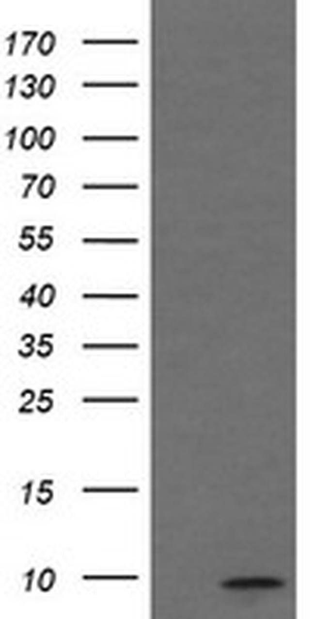 C1orf151 Mouse anti-Human, Clone: OTI4H7, liquid, TrueMAB  100 µL;