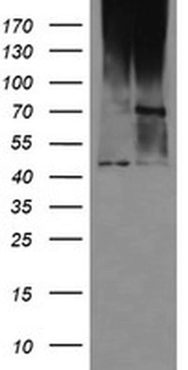 C1orf161 Mouse anti-Human, Clone: OTI2A3, liquid, TrueMAB  100 µL;