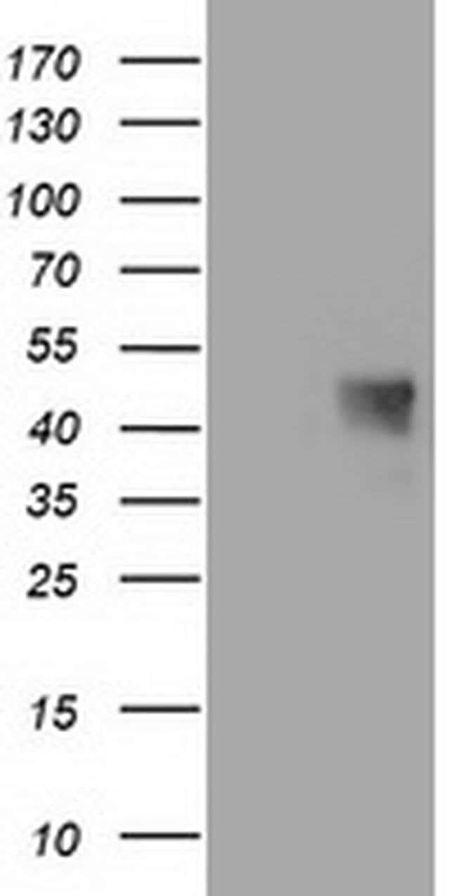 C1orf161 Mouse anti-Human, Clone: OTI1F6, liquid, TrueMAB  100 µL;