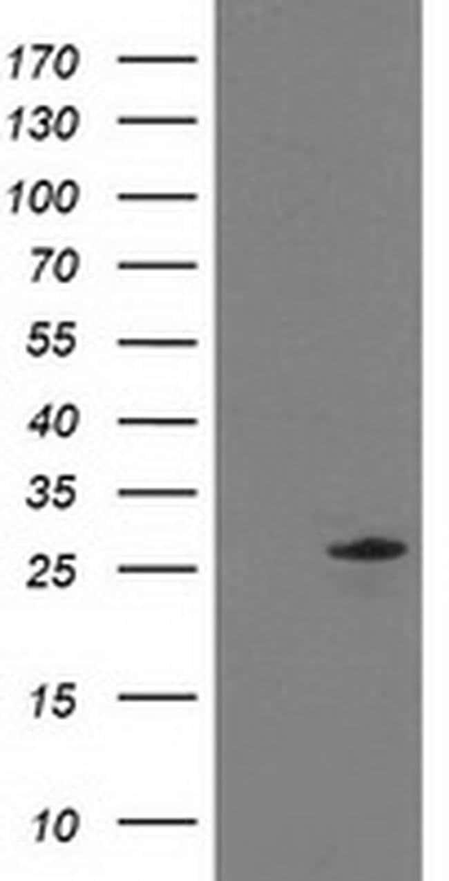 C1orf50 Mouse anti-Human, Clone: OTI2C1, liquid, TrueMAB  100 µL;