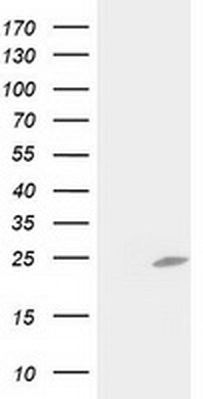 C1orf50 Mouse anti-Human, Clone: OTI1F9, liquid, TrueMAB  100 µL;