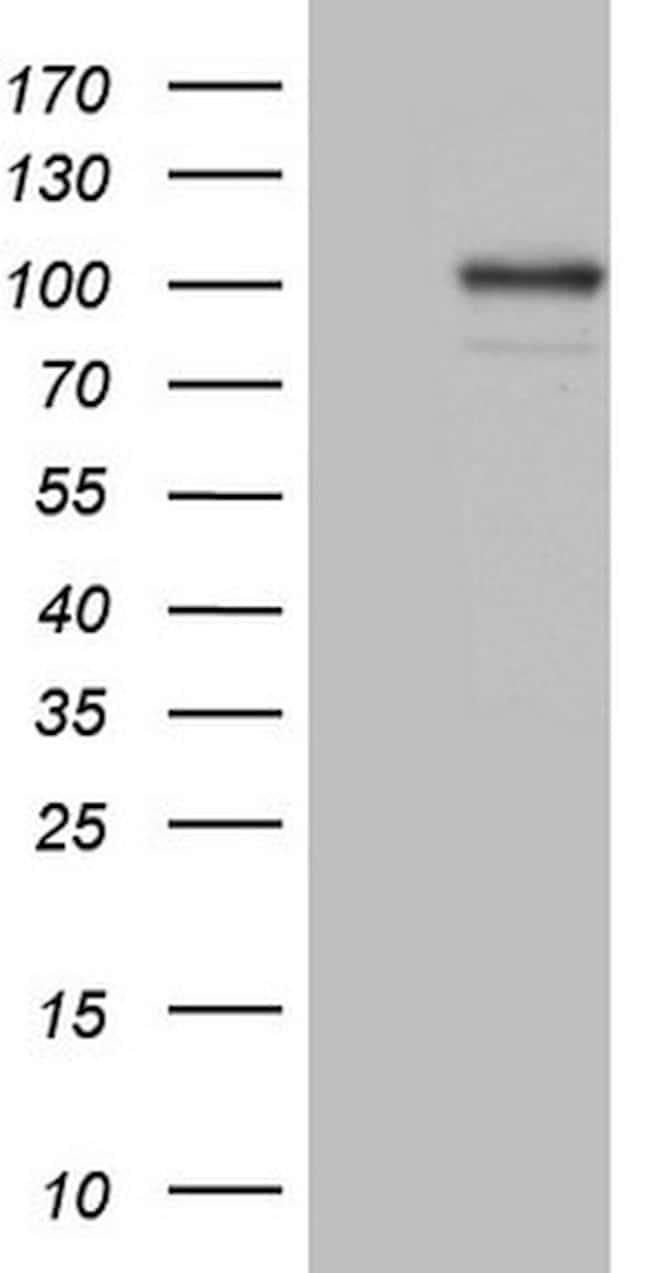 C2 Mouse anti-Human, Clone: OTI12G10, lyophilized, TrueMAB  100 µg;