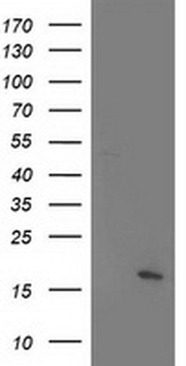 C21orf34 Mouse anti-Human, Clone: OTI5D1, liquid, TrueMAB  100 µL;
