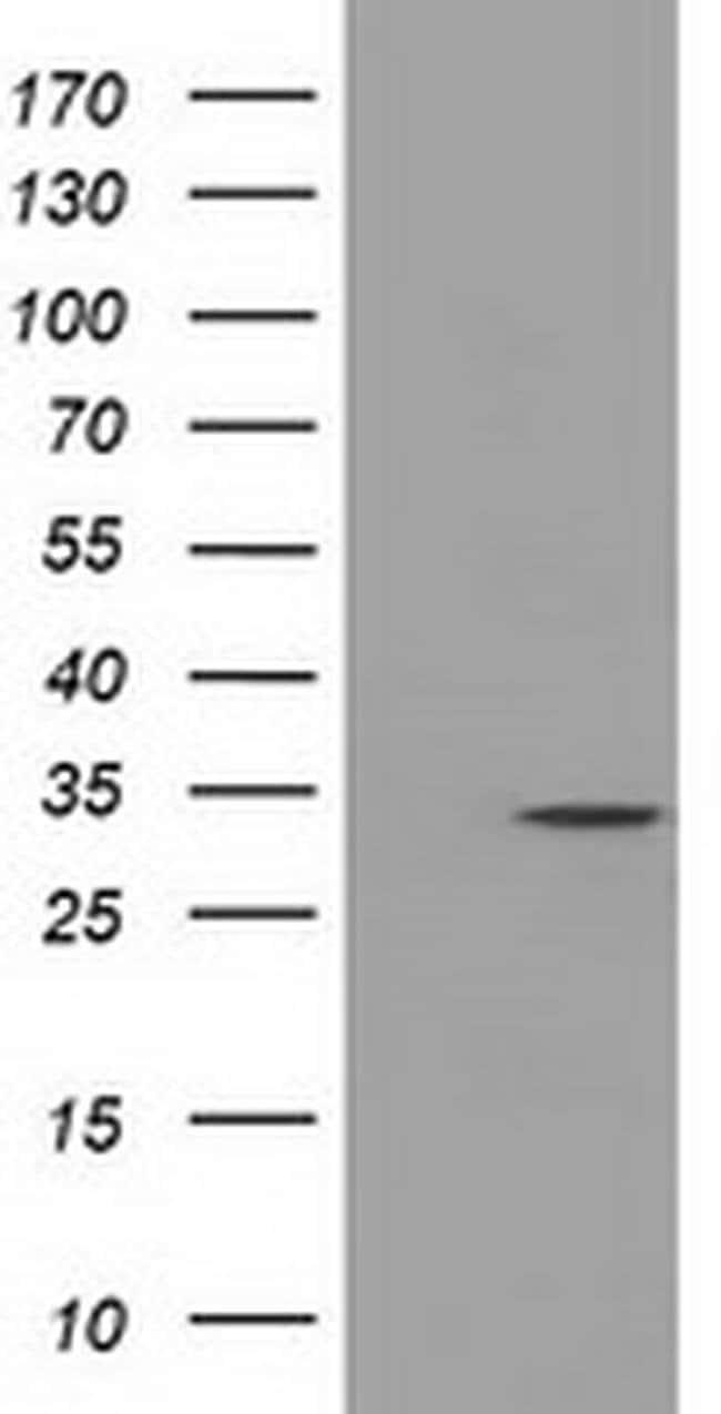 C21orf59 Mouse anti-Human, Clone: OTI1A1, liquid, TrueMAB  100 µL;