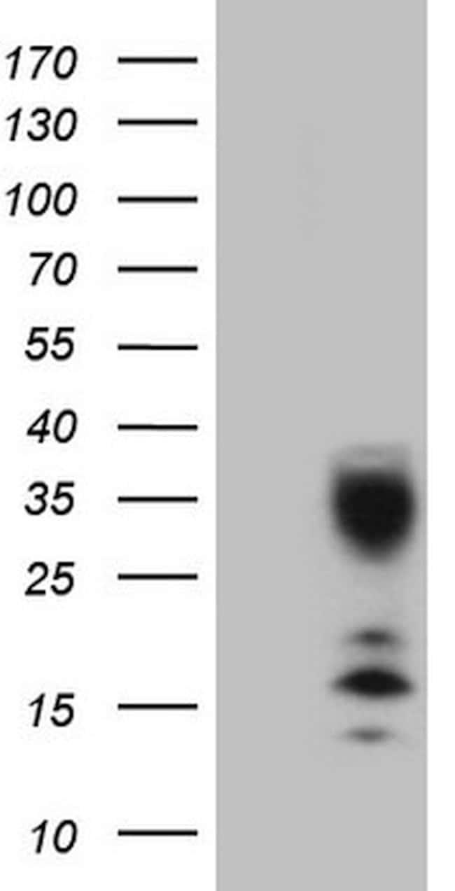 C21orf62 Mouse anti-Human, Clone: OTI5B5, lyophilized, TrueMAB  100 µg;