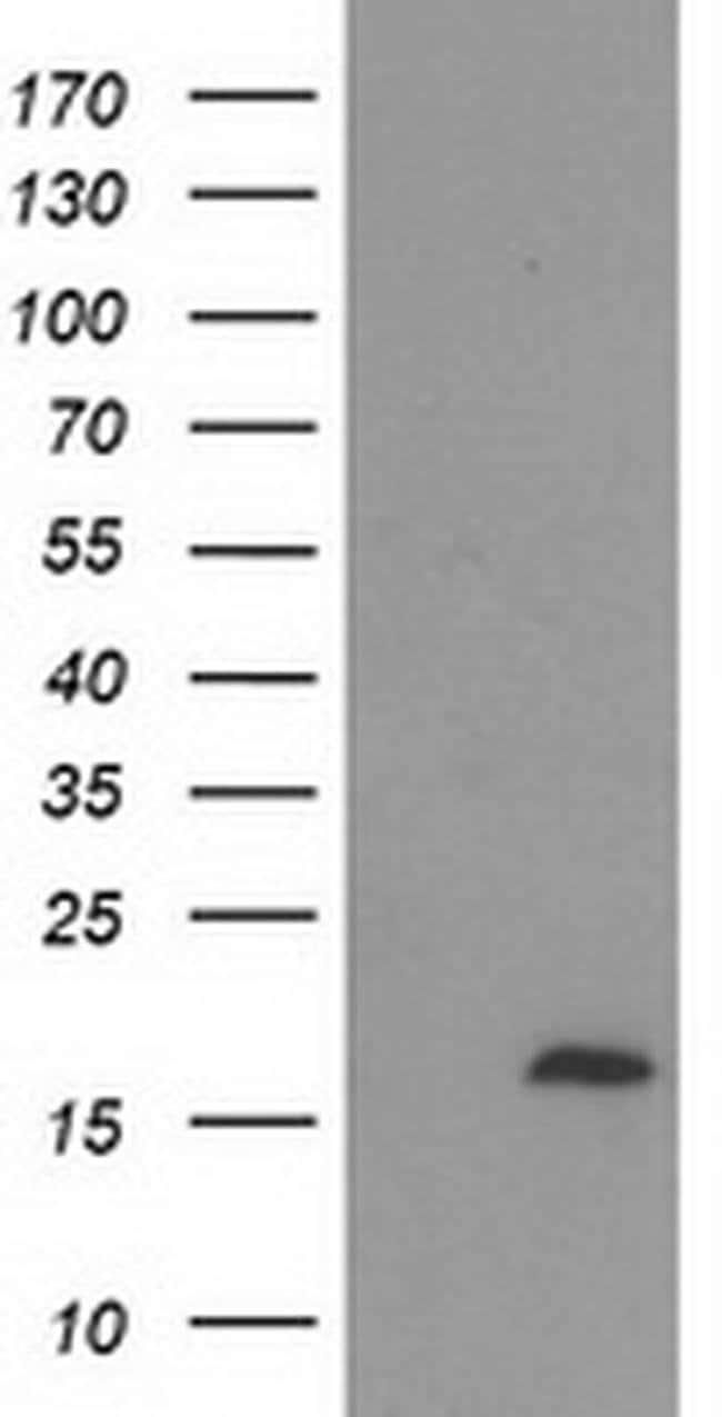 C2orf40 Mouse anti-Human, Clone: OTI1A10, liquid, TrueMAB  100 µL;