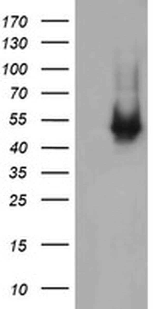 C2orf62 Mouse anti-Human, Clone: OTI2F4, liquid, TrueMAB  100 µL;