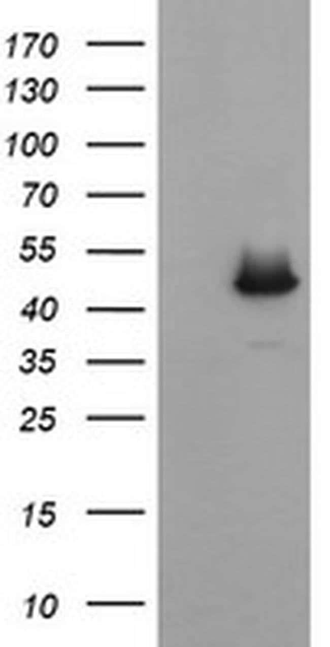 C2orf62 Mouse anti-Human, Clone: OTI4A12, liquid, TrueMAB  100 µL;