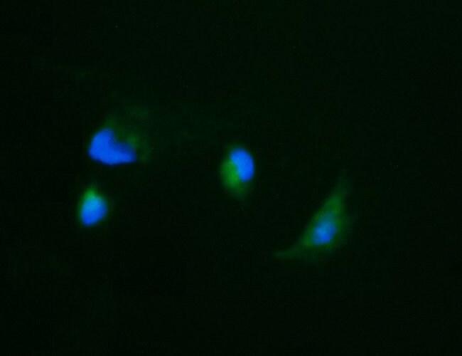 CA12 Mouse anti-Human, Clone: OTI4D1, liquid, TrueMAB  100 µL; Unconjugated