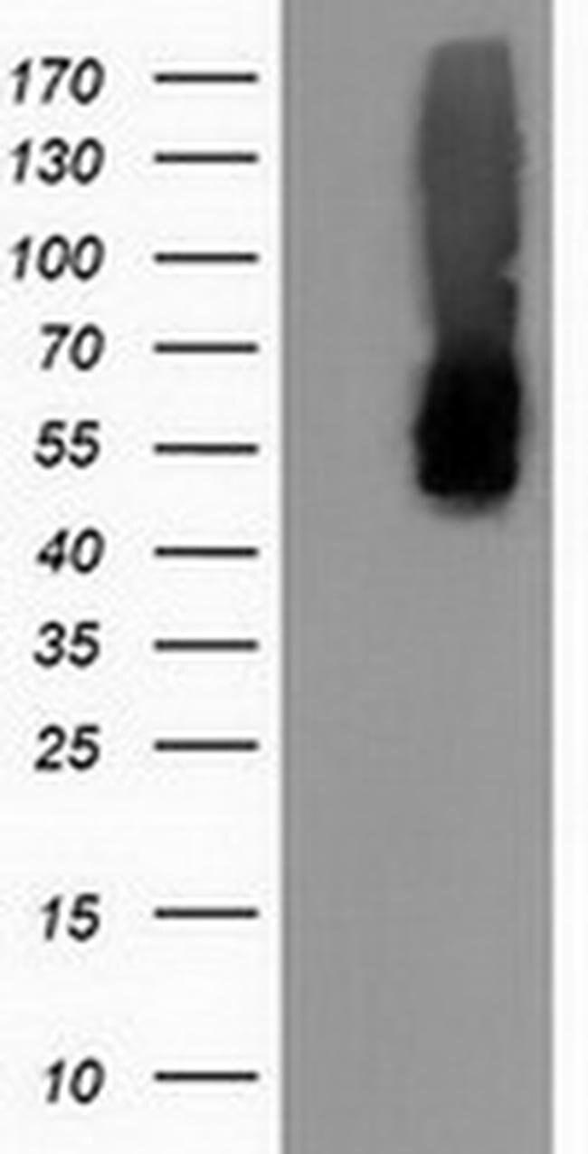 CALCOCO2 Mouse anti-Canine, Human, Rat, Clone: OTI2D11, liquid, TrueMAB
