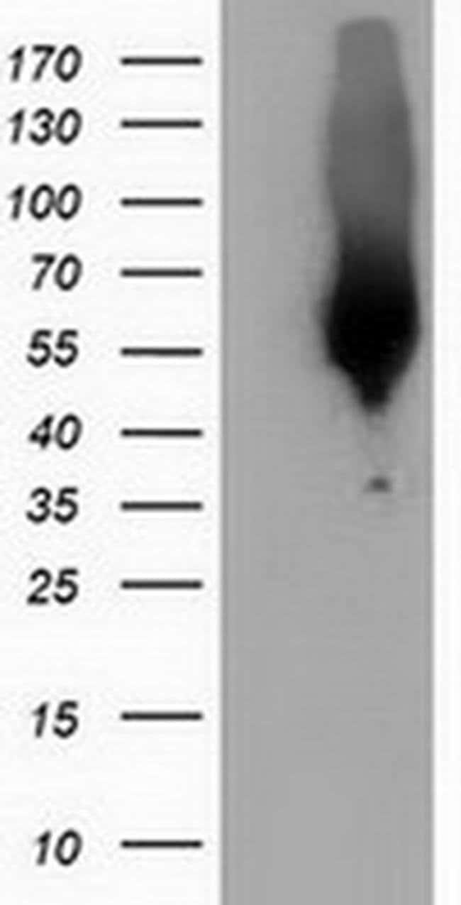 CALCOCO2 Mouse anti-Human, Clone: OTI2C11, liquid, TrueMAB  100 µL;