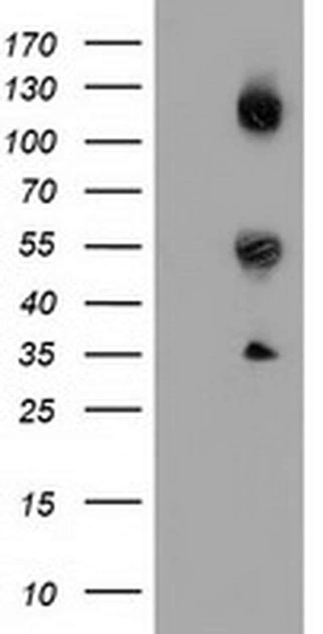 CALCOCO2 Mouse anti-Human, Clone: OTI7A7, liquid, TrueMAB  100 µL;