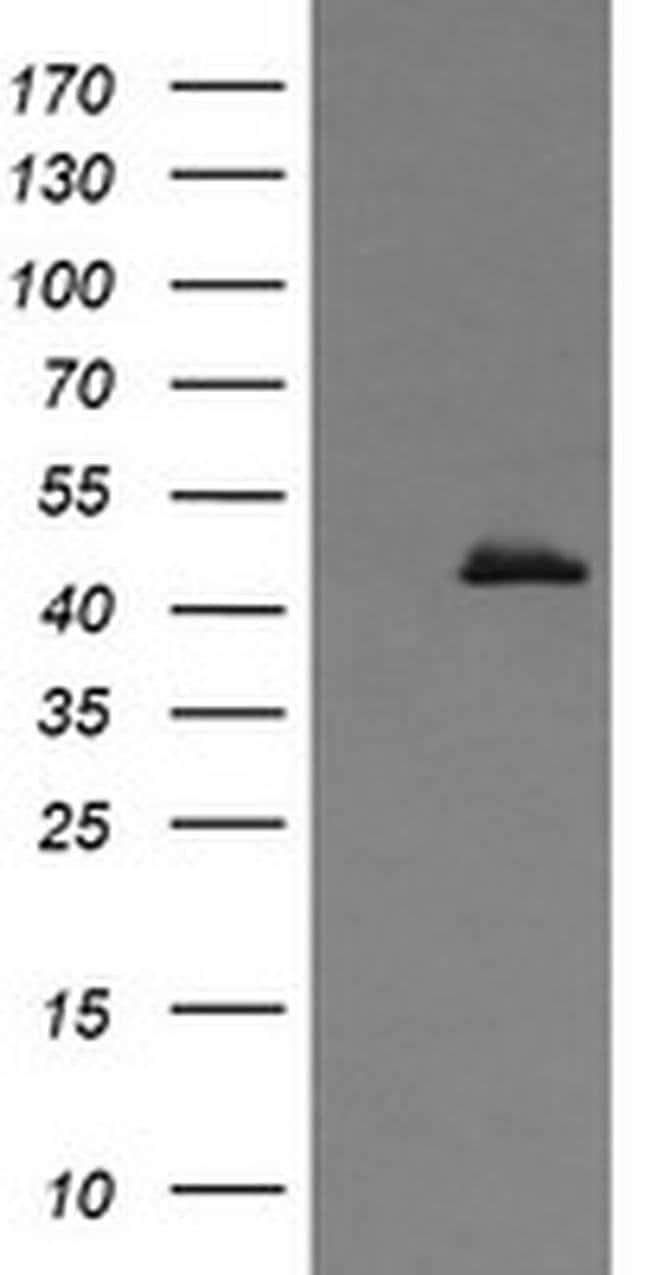 CALR3 Mouse anti-Human, Clone: OTI1G4, liquid, TrueMAB  30 µL; Unconjugated
