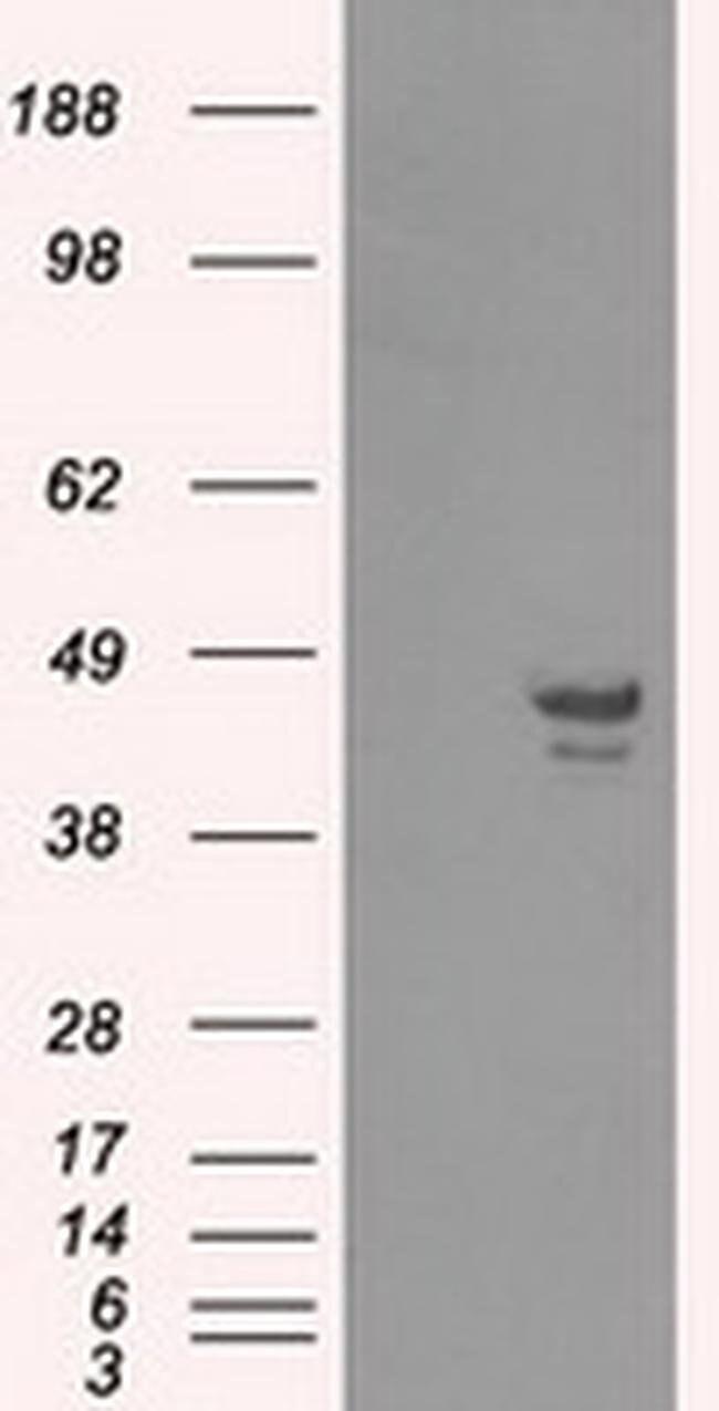 CAMK1D Mouse anti-Human, Clone: OTI2C6, liquid, TrueMAB  100 µL; Unconjugated
