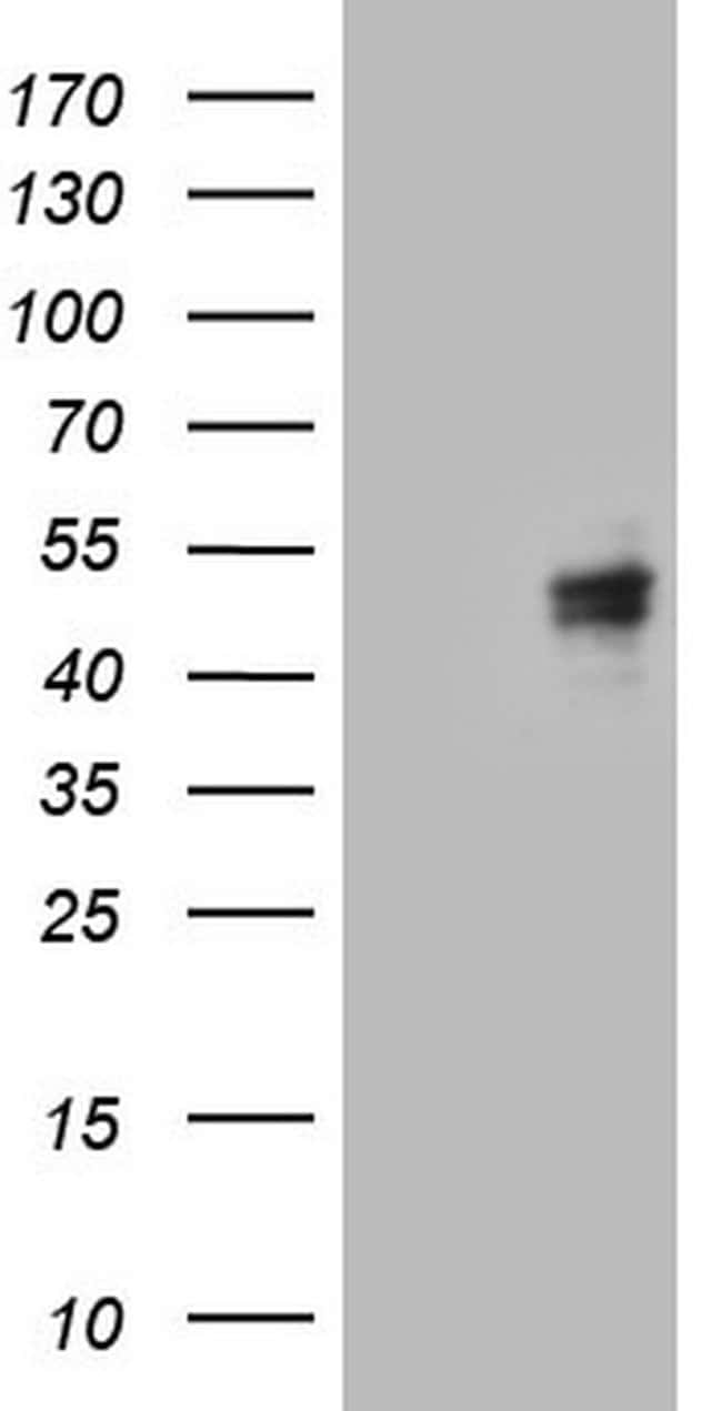 CANT1 Mouse anti-Human, Clone: OTI7F8, lyophilized, TrueMAB  100 µg;