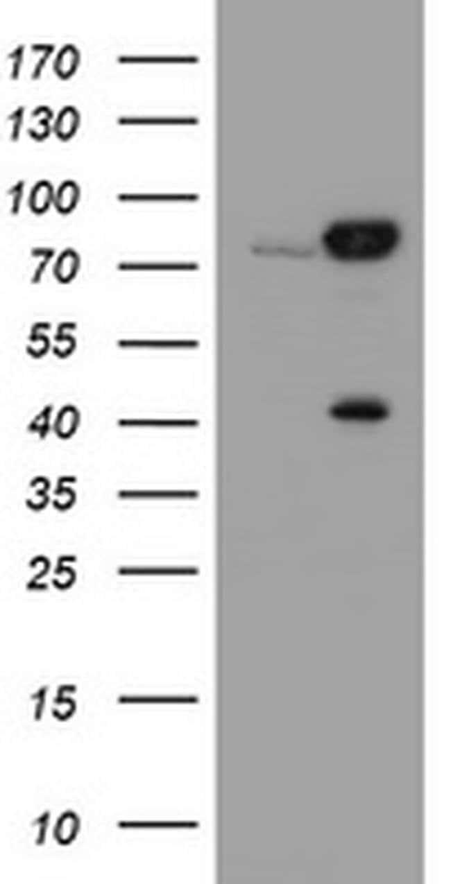 CAPN2 Mouse anti-Canine, Human, Clone: OTI3G1, liquid, TrueMAB  100 µL;