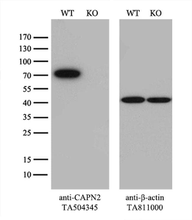 CAPN2 Mouse anti-Human, Mouse, Rat, Clone: OTI1F4, liquid, TrueMAB  100