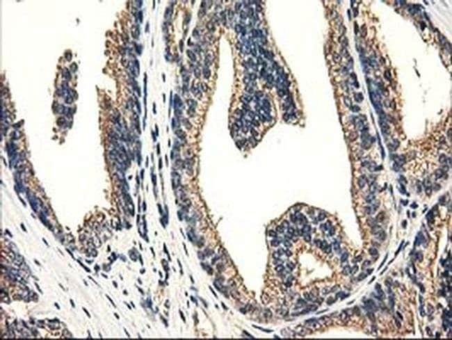 CAT Mouse anti-Human, Clone: OTI1B8, liquid, TrueMAB  100 µL; Unconjugated