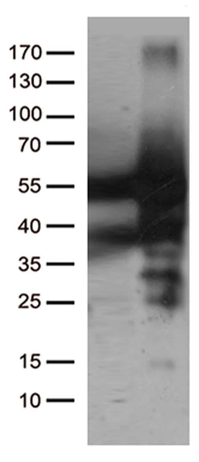 CAT Mouse anti-Canine, Human, Rat, Clone: OTI1B6, liquid, TrueMAB  100