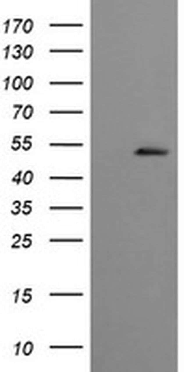 CBLC Mouse anti-Human, Clone: OTI3D9, liquid, TrueMAB  100 µL; Unconjugated