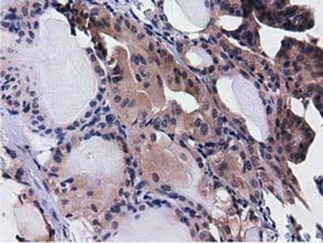 CBWD1 Mouse anti-Human, Clone: OTI3A11, liquid, TrueMAB  100 µL; Unconjugated