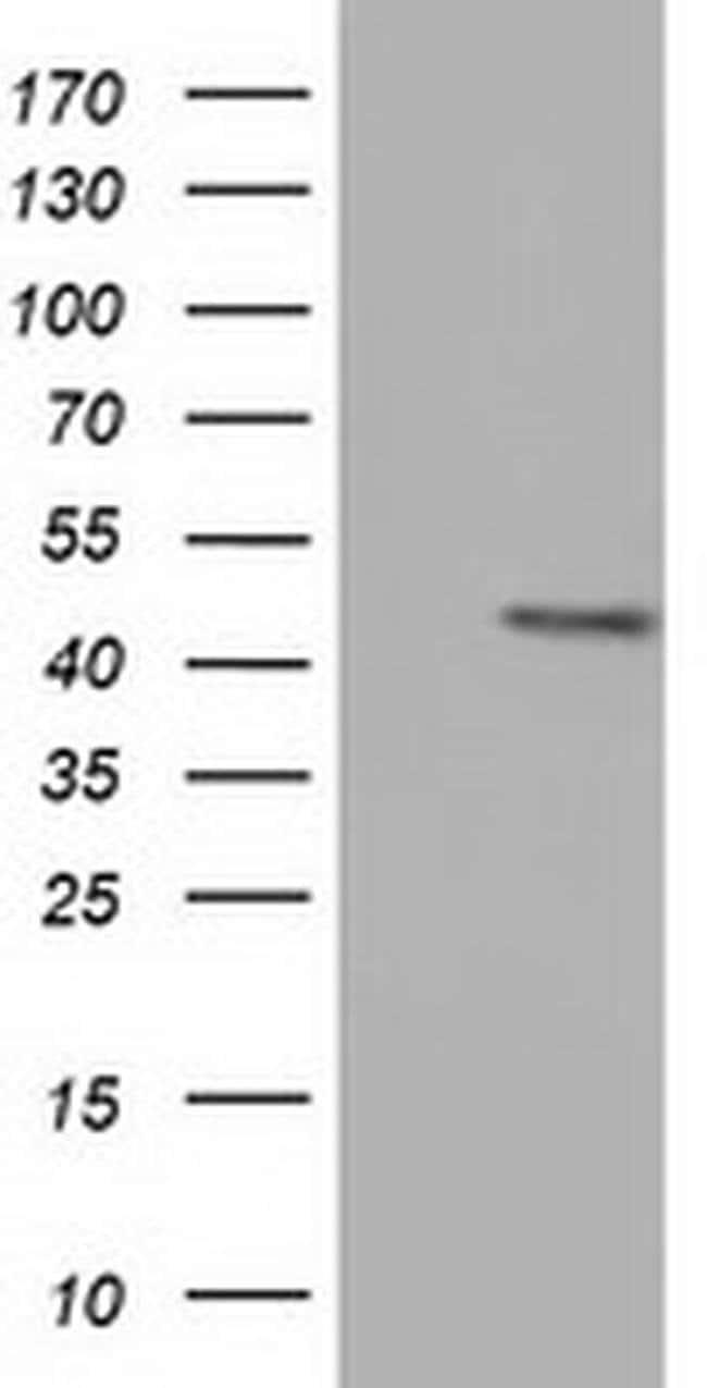 CBWD1 Mouse anti-Human, Clone: OTI5H2, liquid, TrueMAB  100 µL; Unconjugated