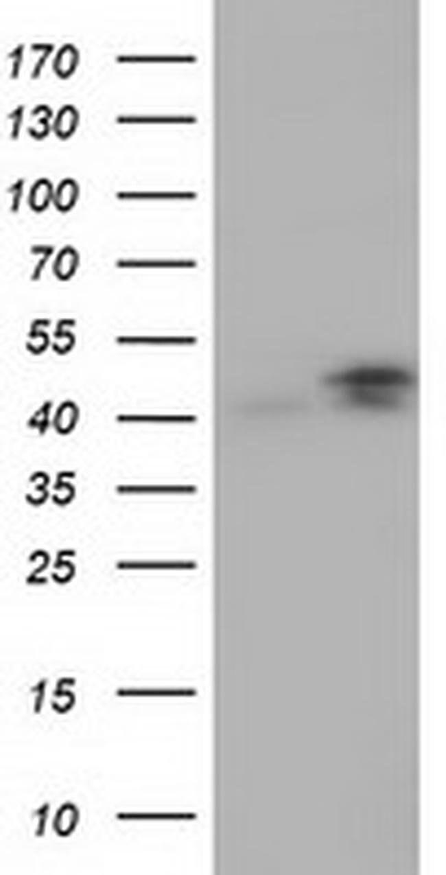 CBWD1 Mouse anti-Human, Clone: OTI2D2, liquid, TrueMAB  100 µL; Unconjugated