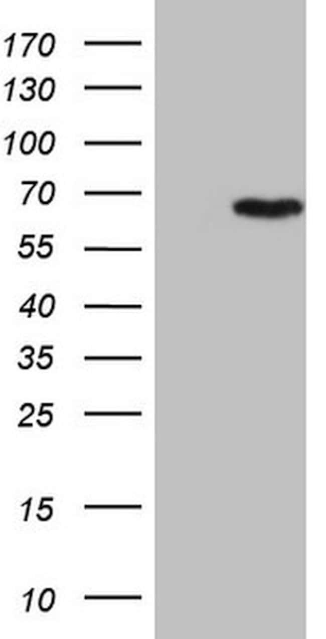CCDC36 Mouse anti-Human, Clone: OTI5E11, lyophilized, TrueMAB  100 µg;
