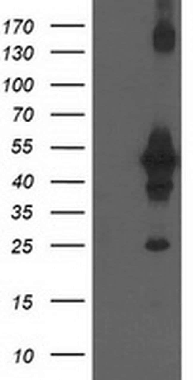 CCM2 Mouse anti-Human, Clone: OTI1E8, liquid, TrueMAB  100 µL; Unconjugated