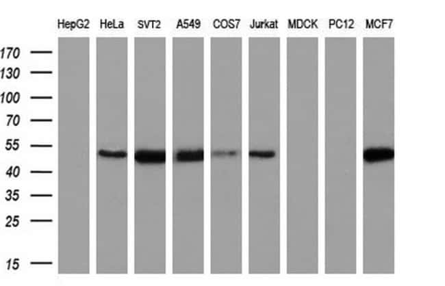 CCM2 Mouse anti-Human, Clone: OTI2C10, liquid, TrueMAB  100 µL; Unconjugated