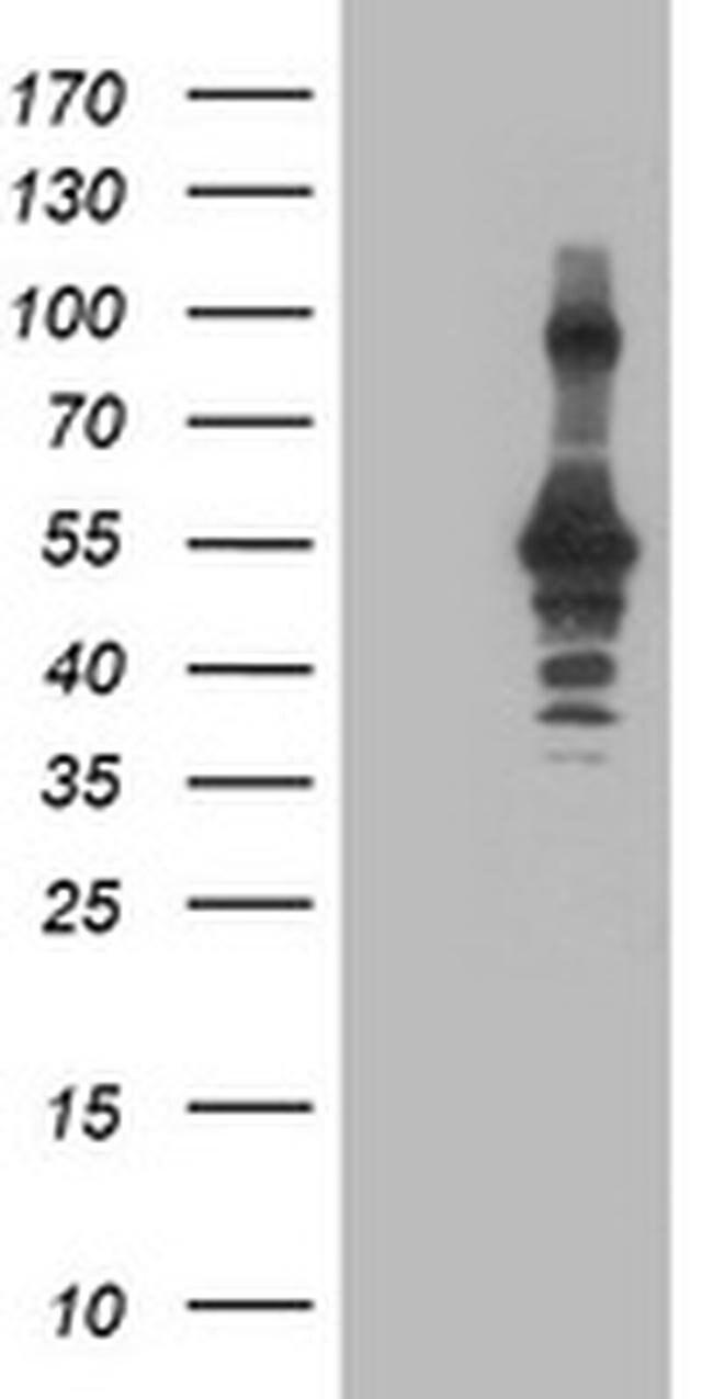 CCM2 Mouse anti-Human, Clone: OTI1D1, liquid, TrueMAB  100 µL; Unconjugated