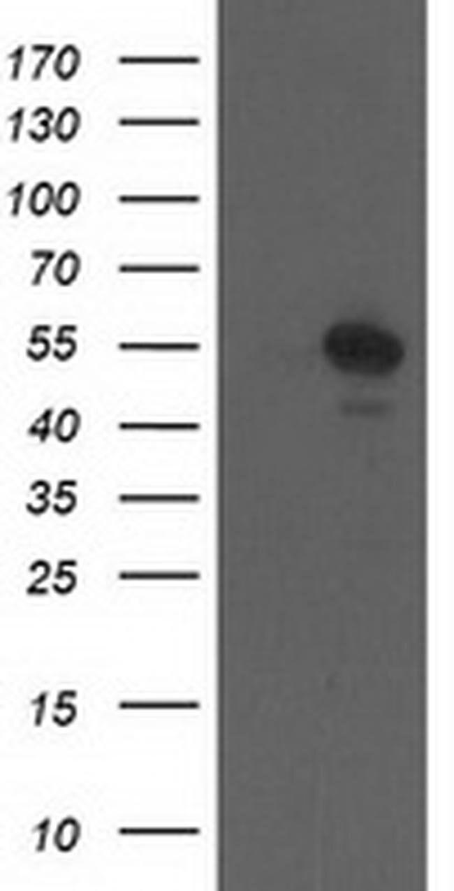CCM2 Mouse anti-Human, Clone: OTI1B9, liquid, TrueMAB  100 µL; Unconjugated