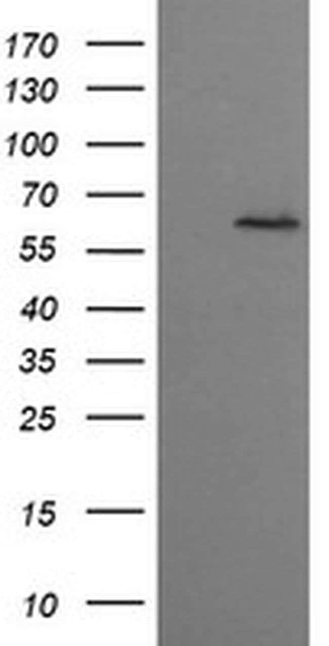 CCT8L2 Mouse anti-Human, Clone: OTI1C1, liquid, TrueMAB  100 µL; Unconjugated
