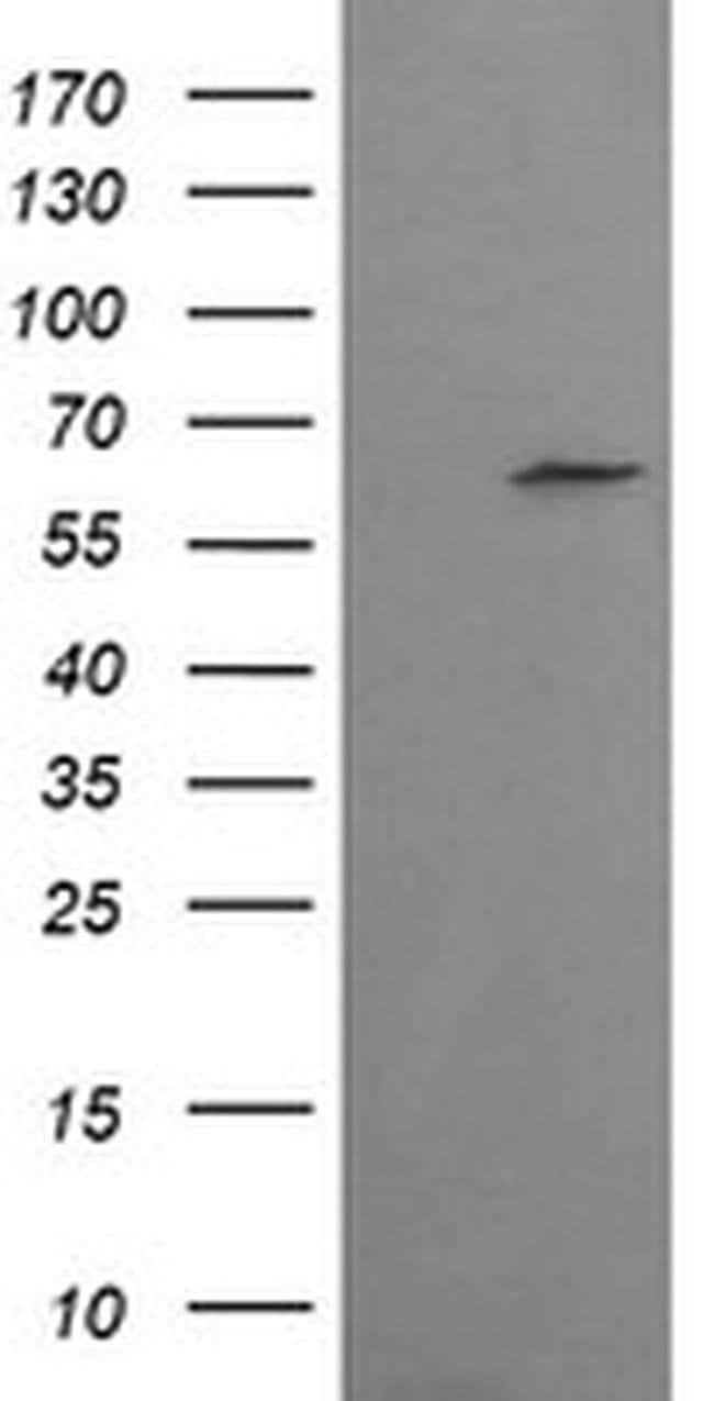CCT8L2 Mouse anti-Human, Clone: OTI4F4, liquid, TrueMAB  100 µL; Unconjugated