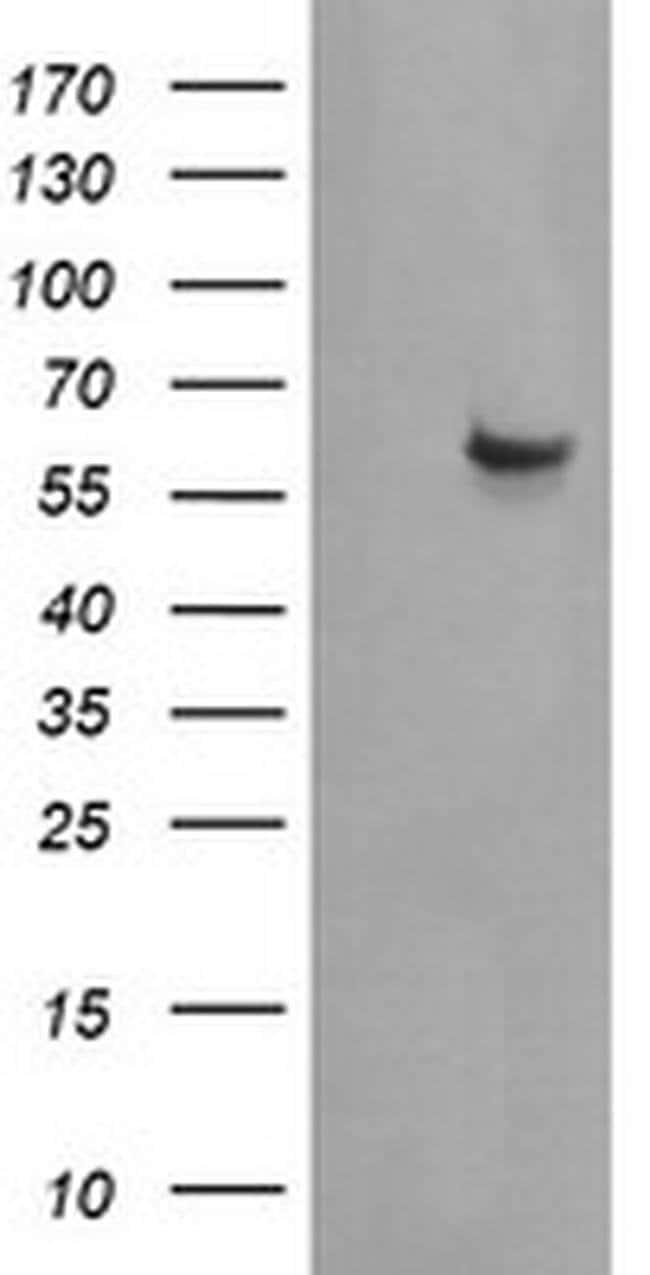 CCT8L2 Mouse anti-Human, Clone: OTI1F7, liquid, TrueMAB  100 µL; Unconjugated