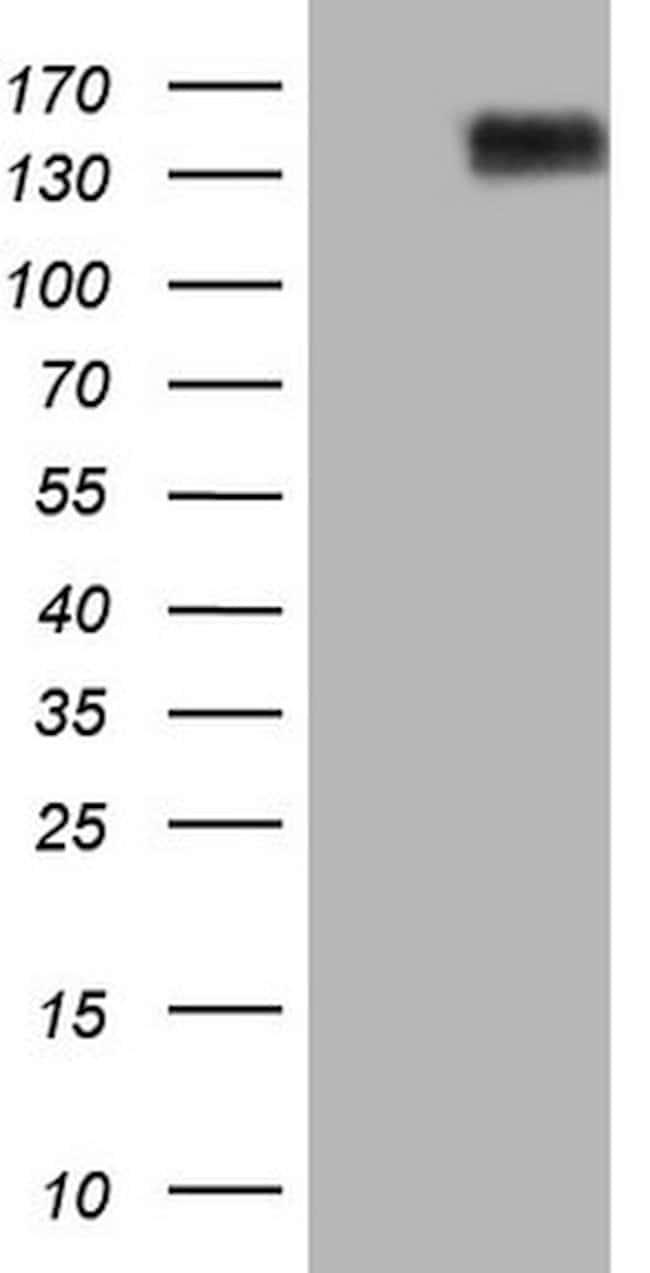 CD13 Mouse anti-Human, Clone: OTI2F10, lyophilized, TrueMAB  100 µg;