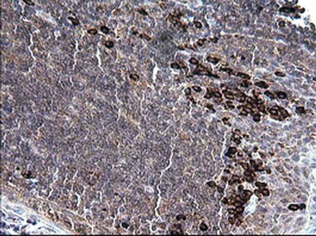 CD163 Mouse anti-Human, Clone: OTI1D5, liquid, TrueMAB  100 µL; Unconjugated