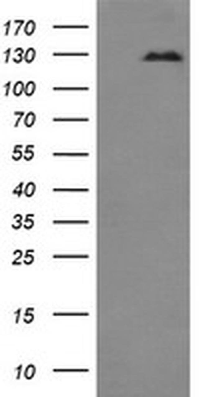 CD163 Mouse anti-Human, Clone: OTI3D4, liquid, TrueMAB  100 µL; Unconjugated