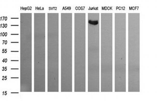 CD163 Mouse anti-Human, Clone: OTI2B12, liquid, TrueMAB  100 µL; Unconjugated
