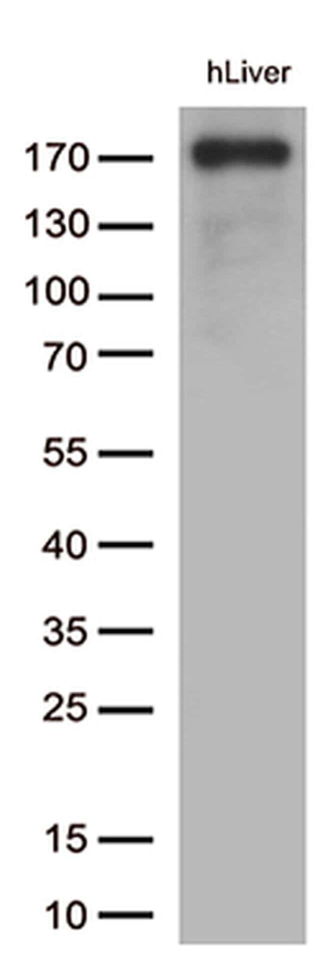 CD163 Mouse anti-Human, Clone: OTI2B12, liquid, TrueMAB  100 µL; Unconjugated