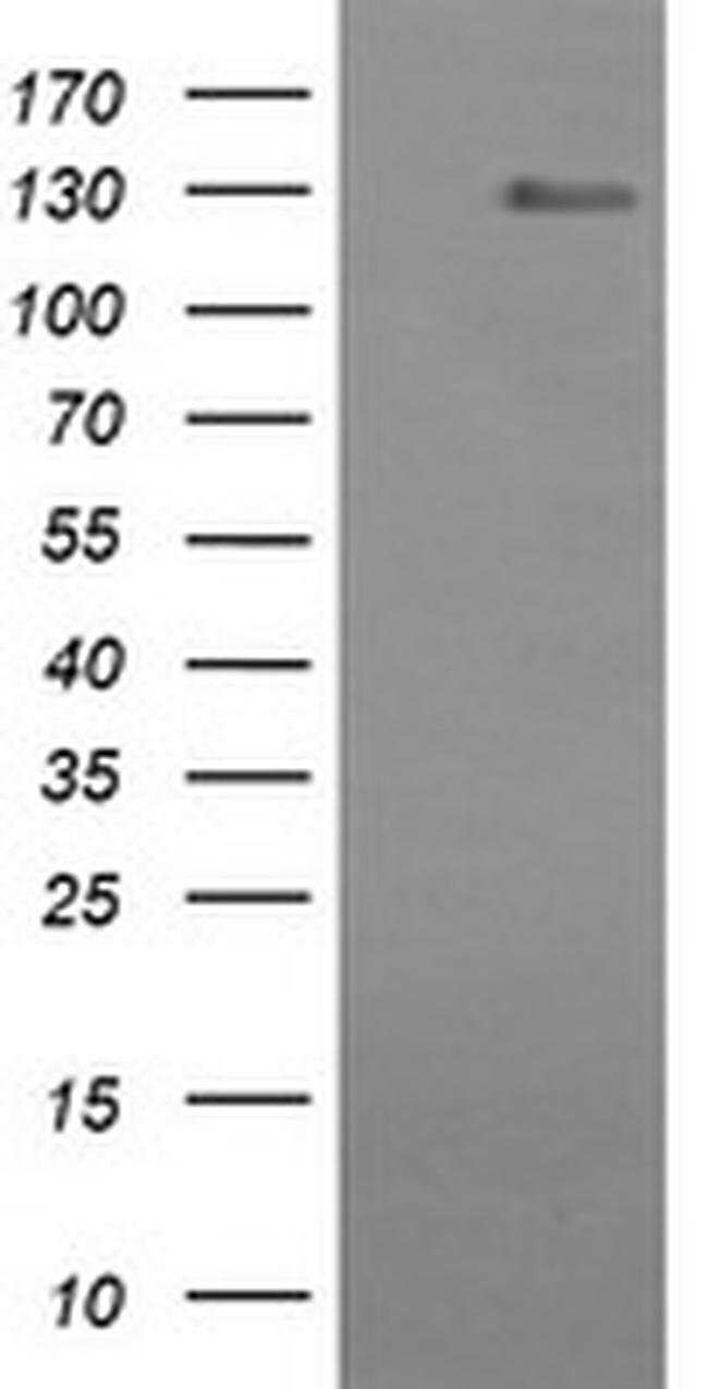 CD163 Mouse anti-Human, Clone: OTI1H1, liquid, TrueMAB  100 µL; Unconjugated