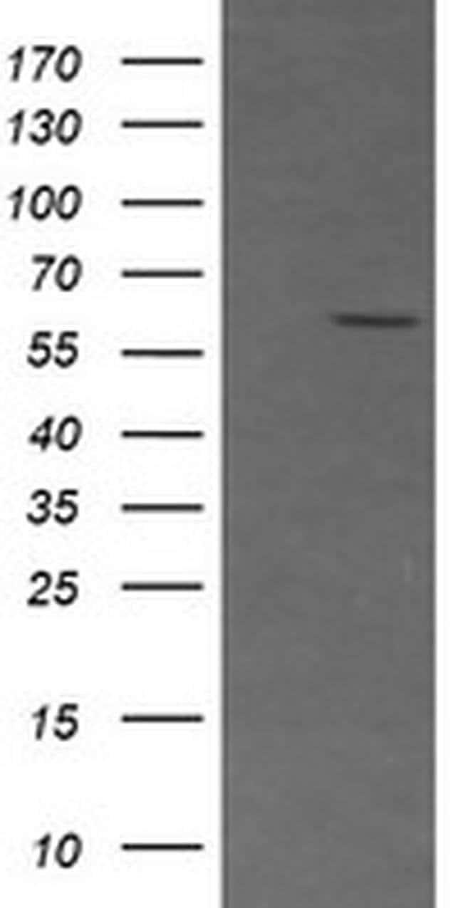 CD19 Mouse anti-Human, Clone: OTI2B11, liquid, TrueMAB  100 µL; Unconjugated