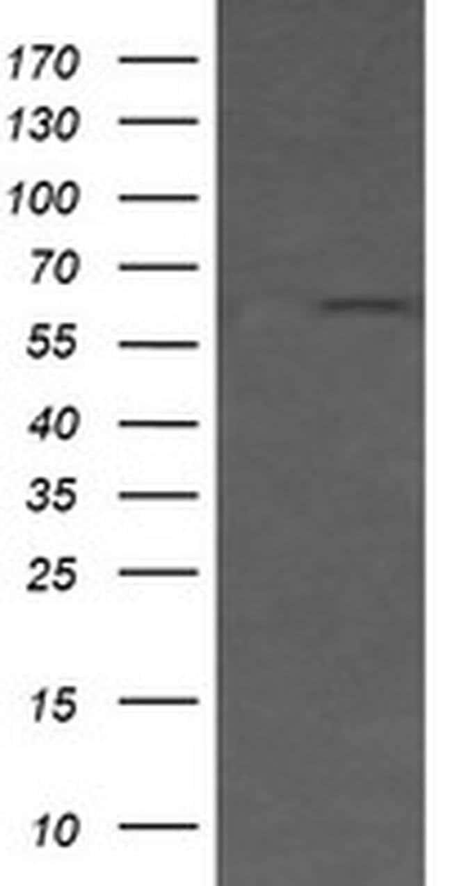 CD19 Mouse anti-Human, Clone: OTI2G7, liquid, TrueMAB  100 µL; Unconjugated