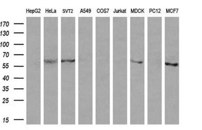 CD19 Mouse anti-Human, Clone: OTI1F9, liquid, TrueMAB  100 µL; Unconjugated